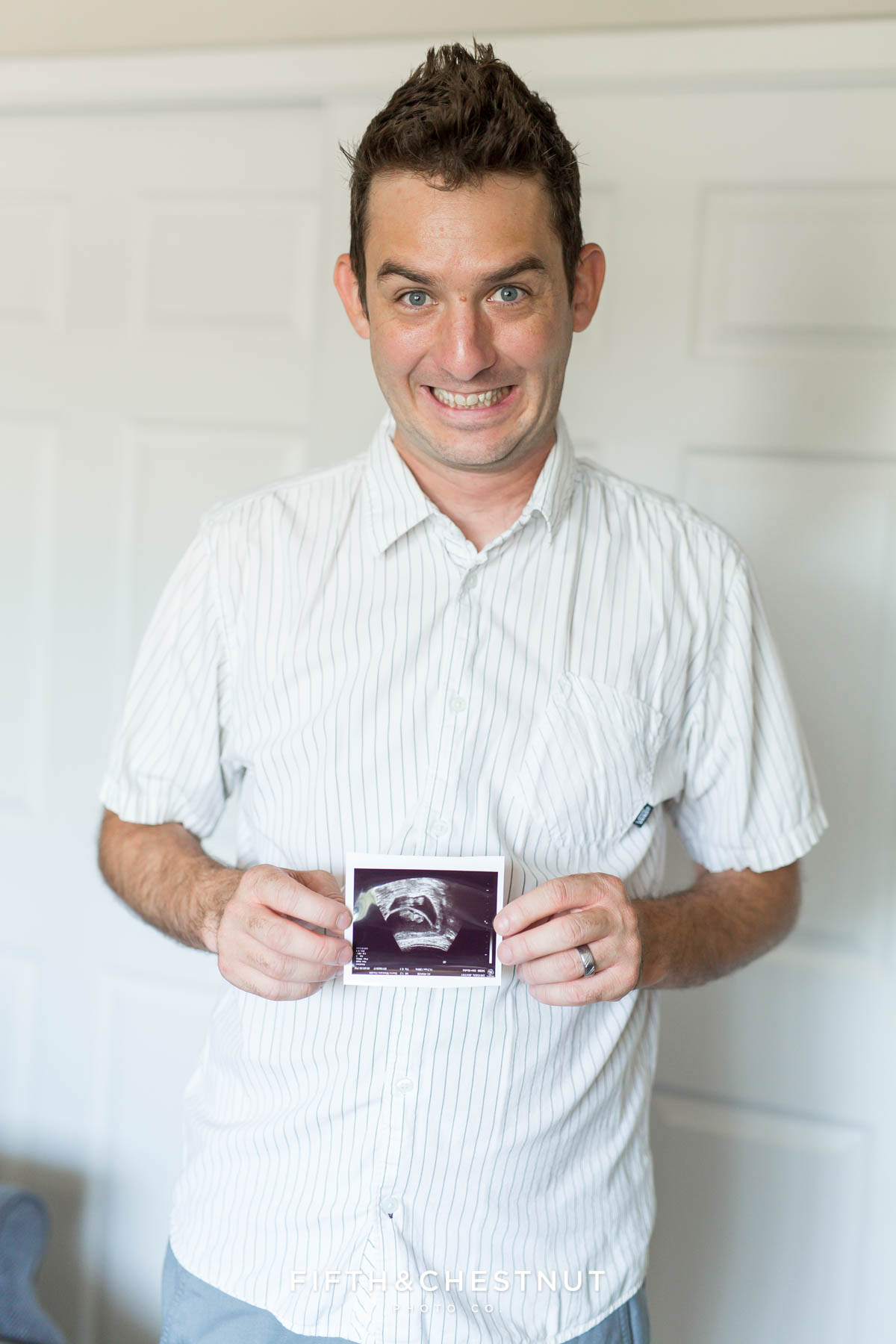 Father of twins freaks out holding ultrasound in a funny way